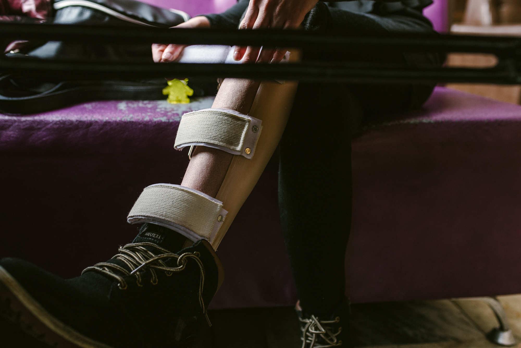 На ноге у Алеси — специальный протез, чтобы было проще ходить и чтобы походка была «как у всех людей»: «На данный момент мне очень тяжело и больно ходить — коксартроз в результате дисплазии двухсторонний. Была в РНПЦ травматологии и ортопедии, нужно оперировать, но нельзя потому, что эпилепсия. А ходить больше двух-трех часов в день не могу».