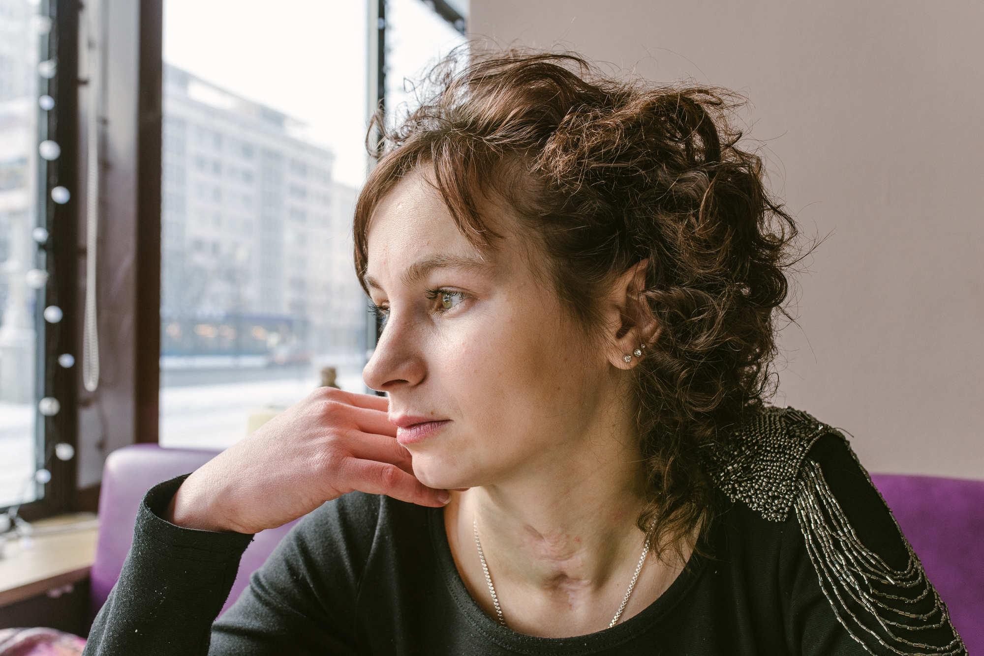 Чтобы Алеся могла дышать, восемь раз ей ставили трахеостому. На шее остались после этого шрамы.